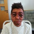 Swindon robbery victim